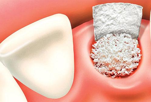 Dental Bone Graft Getirtmek