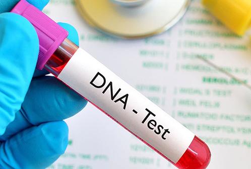 DNA Test Ürünleri