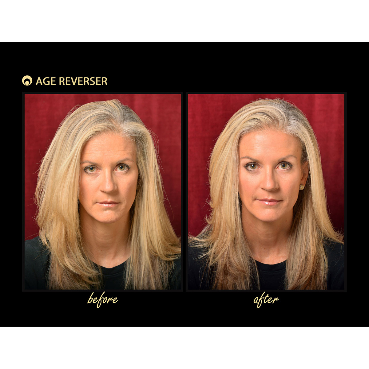 Age Reverser Facelift Band